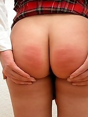Badly swollen buttocks for youthfull pretty blonde