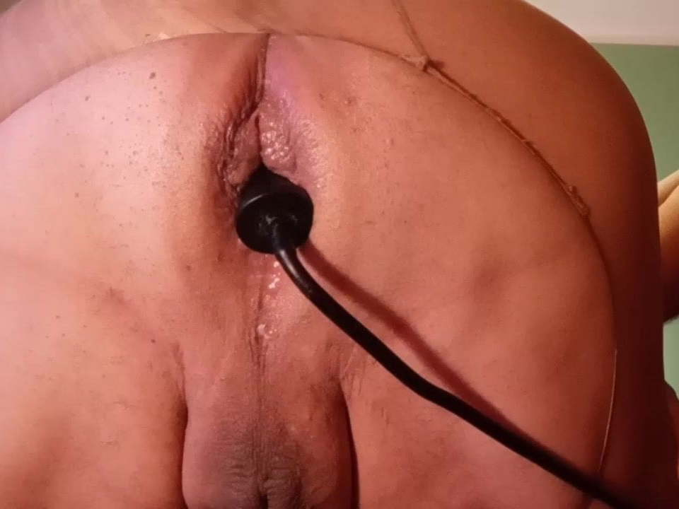 Anal Invasion pumping and propolase