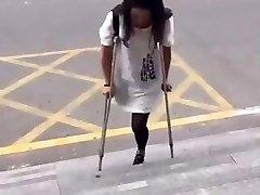 Chinese amputee girl